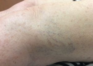 Sclerotherapy before photo